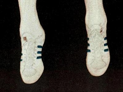 Adidas Superstar Half Shell / Bill Walton